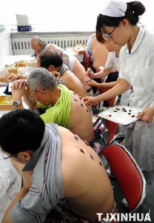 Patients are receiving the Sanfutie. (Photo/Xinhua)