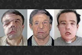 French man becomes world's first person to undergo two face transplants