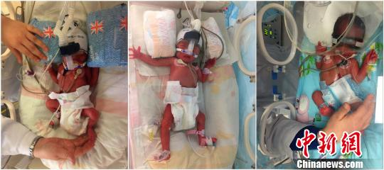 A woman surnamed Chen delivered three babies in a week. (Photo/Chinanews.com)