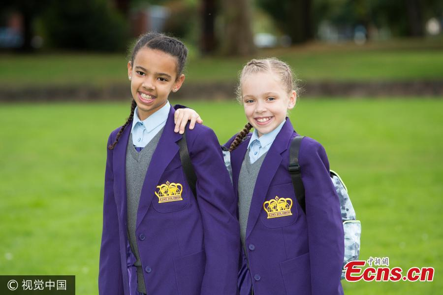 Million To One Black And White Twins To Start Secondary School34