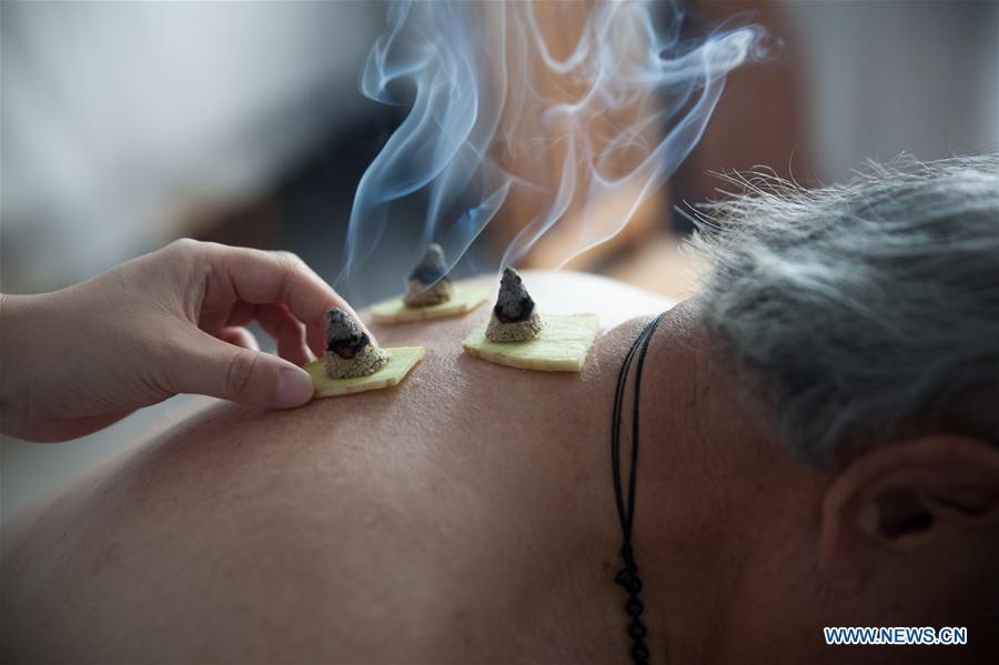 File photo taken on July 12, 2017 shows a patient receiving moxibustion treatment at a traditional Chinese medicine hospital in Gaoqing County, east China\'s Shandong Province. Traditional Chinese medicine (TCM), one of the world\'s oldest forms of medicine with different practices including acupuncture, bee-sting therapy, cupping, moxibustion, scrapping, tui na (Chinese therapeutic massage), still prevails in the modern society after thousands of years of evolution, during which generations have restored and maintained health depending on it. The World Health Organization disease index was updated to include references to traditional Chinese medicine for the first time in June 2018. (Xinhua/Zhang Weitang)