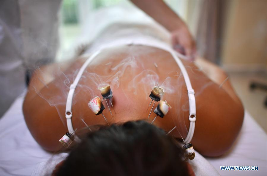 File photo taken June 2, 2018 shows a Russian tourist experiencing moxibustion treatment at Sanya International Friendly Chinese Medicine Sanatorium in Sanya, south China\'s Hainan Province. Traditional Chinese medicine (TCM), one of the world\'s oldest forms of medicine with different practices including acupuncture, bee-sting therapy, cupping, moxibustion, scrapping, tui na (Chinese therapeutic massage), still prevails in the modern society after thousands of years of evolution, during which generations have restored and maintained health depending on it. The World Health Organization disease index was updated to include references to traditional Chinese medicine for the first time in June 2018. (Xinhua/Guo Cheng)