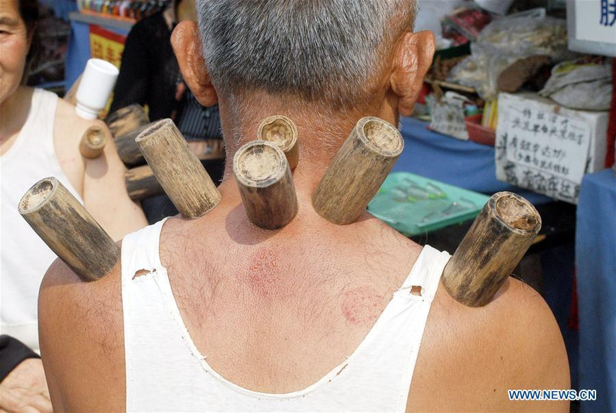 File photo taken on May 24, 2003 shows a man experiencing cupping by roadside in Guiyang, capital of southwest China\'s Guizhou Province. Traditional Chinese medicine (TCM), one of the world\'s oldest forms of medicine with different practices including acupuncture, bee-sting therapy, cupping, moxibustion, scrapping, tui na (Chinese therapeutic massage), still prevails in the modern society after thousands of years of evolution, during which generations have restored and maintained health depending on it. The World Health Organization disease index was updated to include references to traditional Chinese medicine for the first time in June 2018. (Photo/Xinhua)