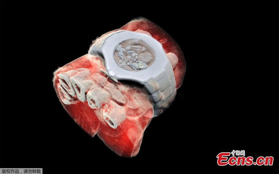 This picture released on July 12, 2018 by MARS Bioimaging Ltd shows a 3D image of a wrist with a watch showing part of the finger bones in white and soft tissue in red. New Zealand scientists has done the first-ever 3-D, colour X-ray on a human, using a technique promising to improve the field of medical diagnostics, announced Europe\'s CERN physics lab which contributed technology. (Photo/Agencies)