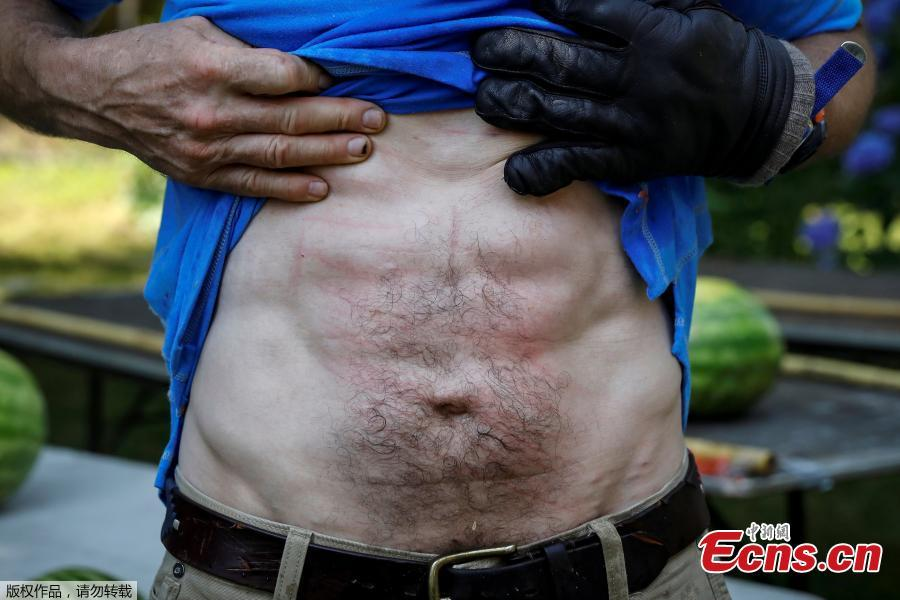 Ashrita Furman, who holds more Guinness World Records than anyone, shows his stomach after setting a new record for slicing the most watermelons in half on his own stomach in one minute in New York City, U.S., July 17, 2018. (Photo/Agencies)