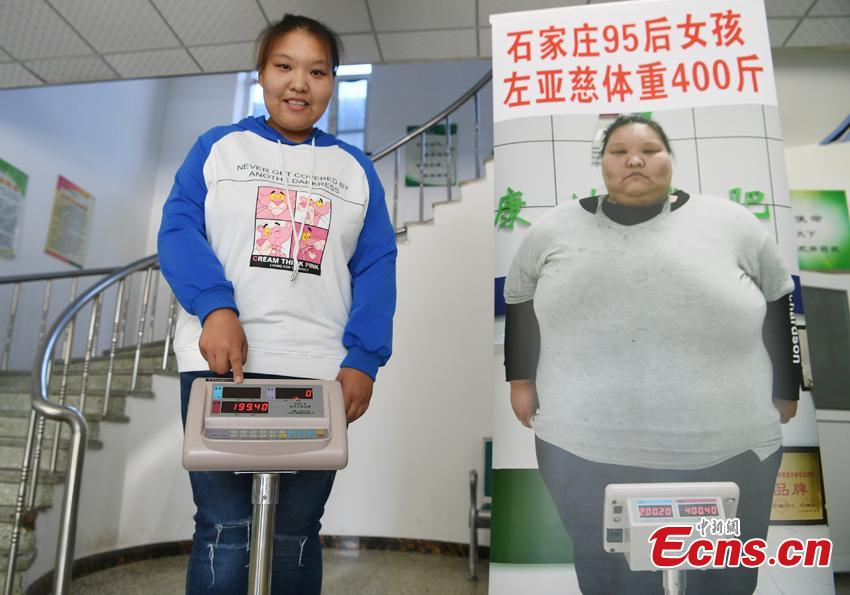 Zuo Yaci, 21, poses with a poster of her when she weighed up to 200 kilograms. She dropped out of school in Hebei Province because she was plus-size when just a second-year middle school student. Zuo began receiving treatment to lose weight at a hospital in Changchun, Jilin Province in September 2017, slashing her weight to 100 kilograms. She says she now feels more confident and optimistic about life. (Photo: China News Service/Zhang Yao)