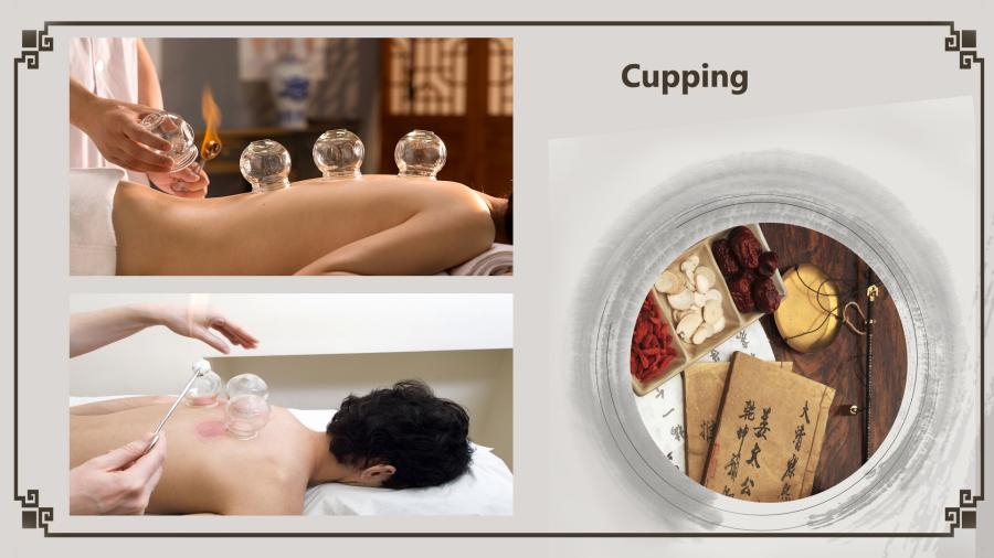 Cupping involves putting heated cups against the skin that create a small area of mild suction. It is believed by some that cupping promotes blood circulation and can relieve pain. (Photo/China Plus)