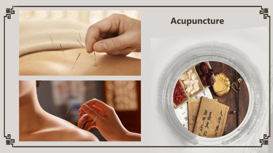 Acupuncture is a family of procedures that stimulate specific points on the body by inserting extremely thin needles into the skin. It is often used to provide pain relief for conditions like lower back pain, shoulder stiffness, and knee soreness. Acupuncture must always be done by an appropriately trained practitioner using clean needles. (Photo/China Plus)