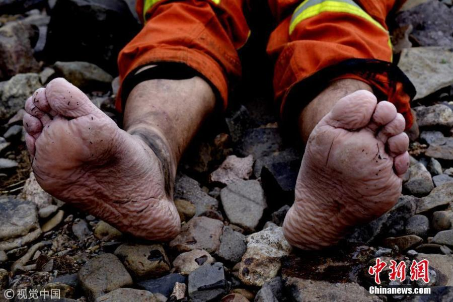 A firefighter takes off his shoes and reveals the condition of his feet after long immersing in water, Hulunbuir, Inner Mongolia, June 4, 2018.  (Photo/Agencies)
