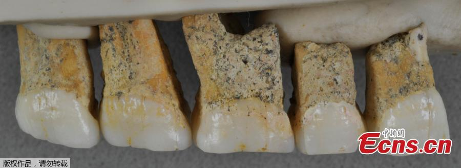 From right to left, two premolars and three molars from the upper right jaw of the same Homo Luzonensis adult.  (Photo/Agencies)