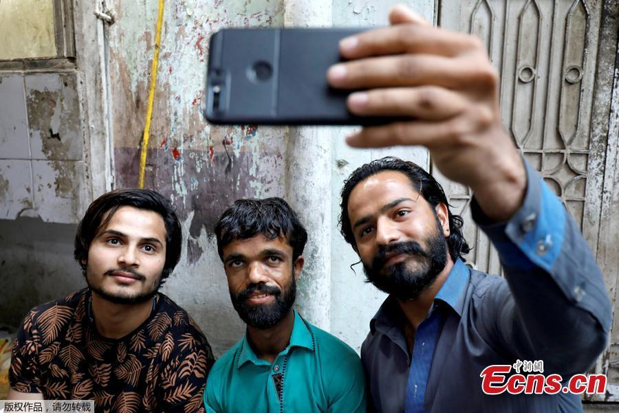 People take selfie with Rozi Khan, 26, a waiter and a lookalike of Hollywood\'s actor Peter Dinklage, who plays a character of Tyrion Lannister in the tv series \
