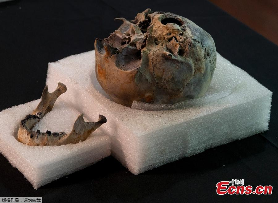 A mummy skull that was used for research purposes is presented to the media by the National Museum during a news conference in Rio de Janeiro, Brazil, Tuesday, May 7, 2019. Brazil\'s national museum said Tuesday it has recovered 200 pieces from its 700 pieces Egypt collection, the largest in Latin America, after a devastating fire in September 2018.