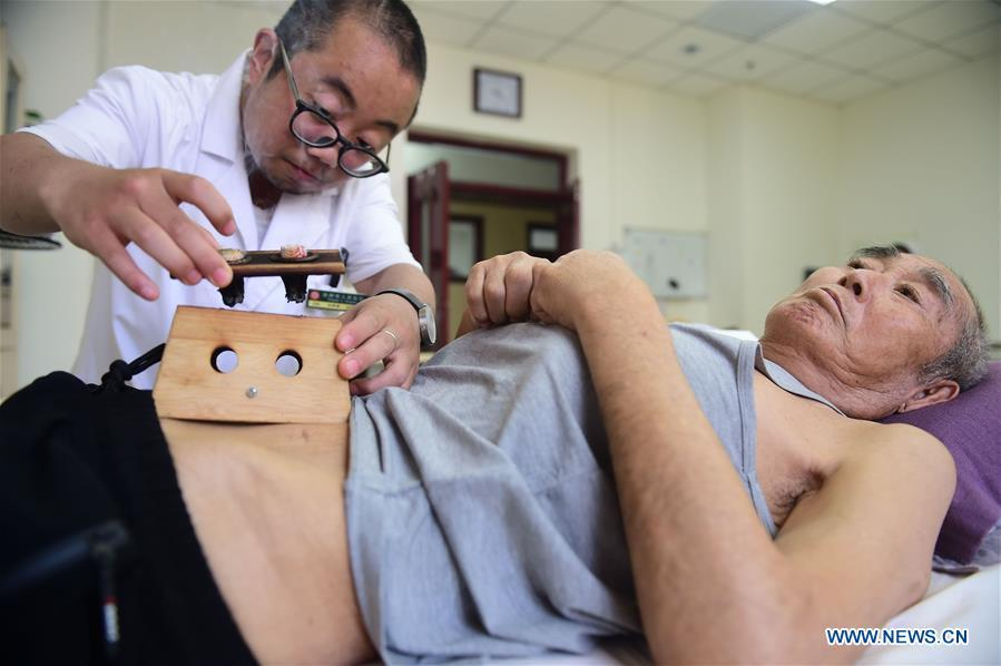 A doctor gives moxibustion treatment to a patient at Cangzhou People\'s Hospital in Cangzhou, north China\'s Hebei Province, May 26, 2019. Traditional medicine originating from Traditional Chinese Medicine (TCM) has been incorporated into the 11th revision of the International Classification of Diseases (ICD), marking a major step for TCM\'s internationalization. The revision was approved Saturday at the 72 World Health Assembly being held in Geneva, Switzerland, according to China\'s National Administration of Traditional Chinese Medicine. (Xinhua/Fu Xinchun)