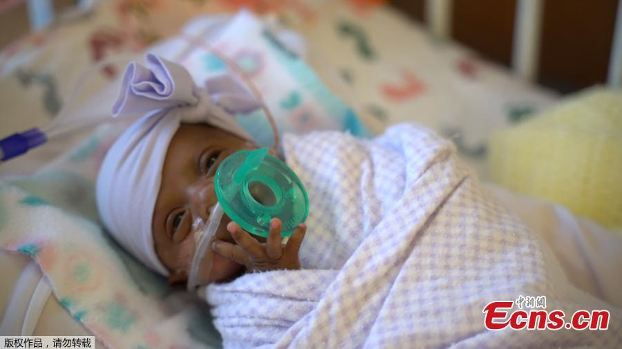 The picture shows baby Saybie, the world\'s smallest surviving newborn, when she weighed 3 lbs in March 2019 in San Diego, California. A baby girl who weighed 245 grams and measured 23 cm became the smallest baby in the world, a US hospital reported after being discharged five months after being in intensive care. (Photo/Agencies)