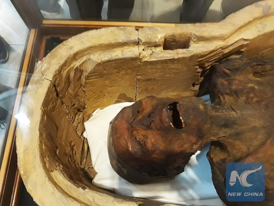 Egypt retrieves mummy parts smuggled to U.S. over 90 years ago