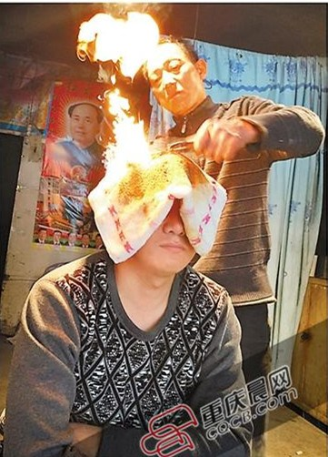 Man tries 'fire treatment' for chronic headache