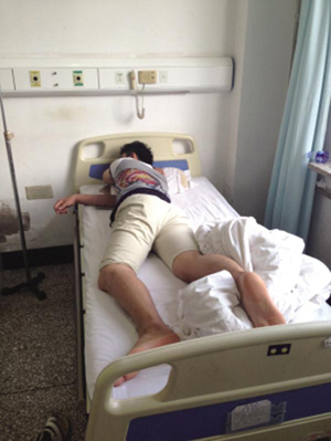 A man surnamed Wang lies in bed after getting mistaken haemorrhoid surgery at Hunnan Hospital in Shenyang City, Liaoning Province. (Photo/Huashang Morning Post)